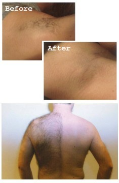 Unwanted Hair Removal Treatment. These pictures show an armpit before the hair removal treatment and after just three hair removal treatment sessions.
