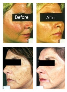 Sun Damaged Skin Treatment: Facial treatments are the most popular, but all parts of the body can be treated.